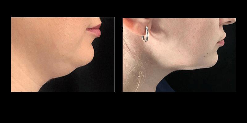 coolsculpting antes y después papada
